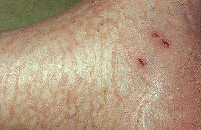 eczema 1 Eczema Pictures
