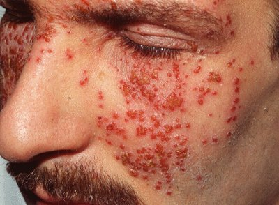 Eczema Guide Eczema Images Eczema Herpeticum
