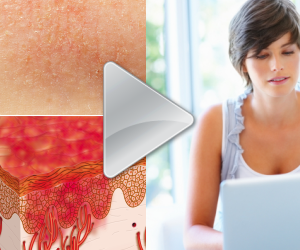 Watch videos about Eczema